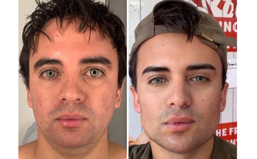 Facial Harmonization