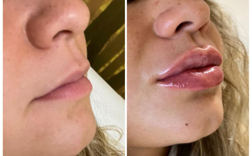 Lips Enhancement
